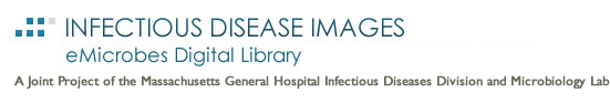 Partners Infectious Disease Images